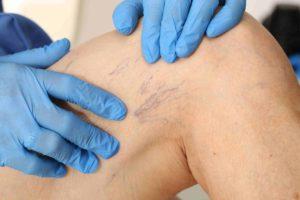 Hogy a sebész hogyan kezeli a visszérbetegségeket, Dr. Sepa György érsebész